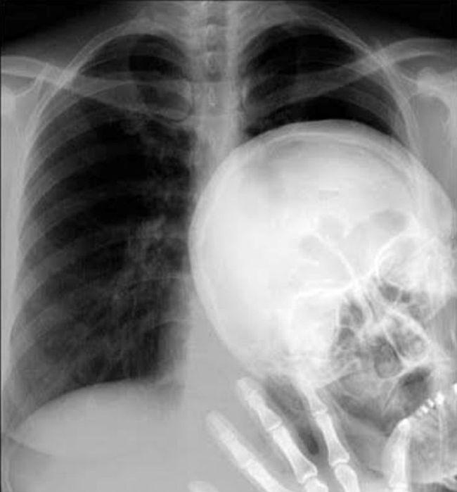 x-ray, face, wave, lol, fail
