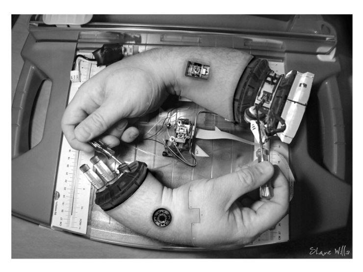 cyborg hands, wtf, technology, fix