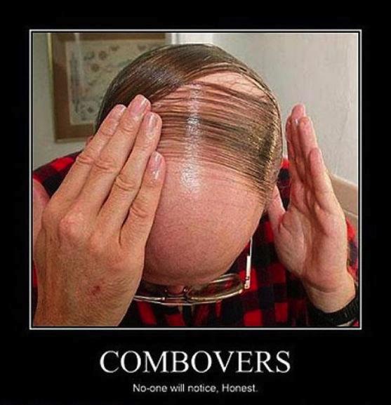 motivation, combovers, hair, baldness