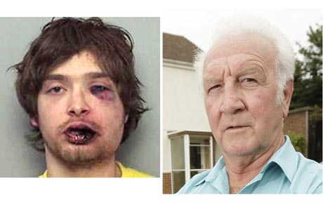 burglar left bruised by 72 year old boxer