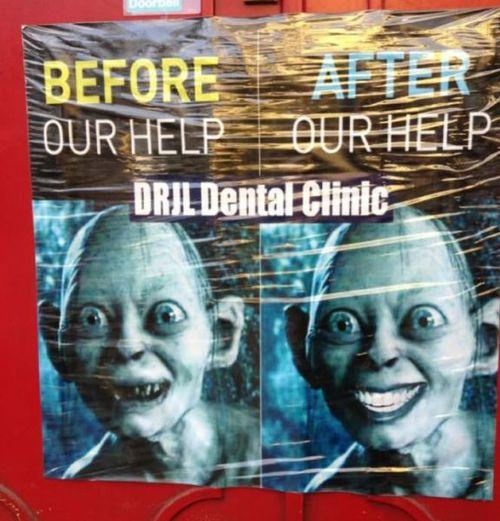 golem, before, after, dril dental clinic, lotr, lol, teeth