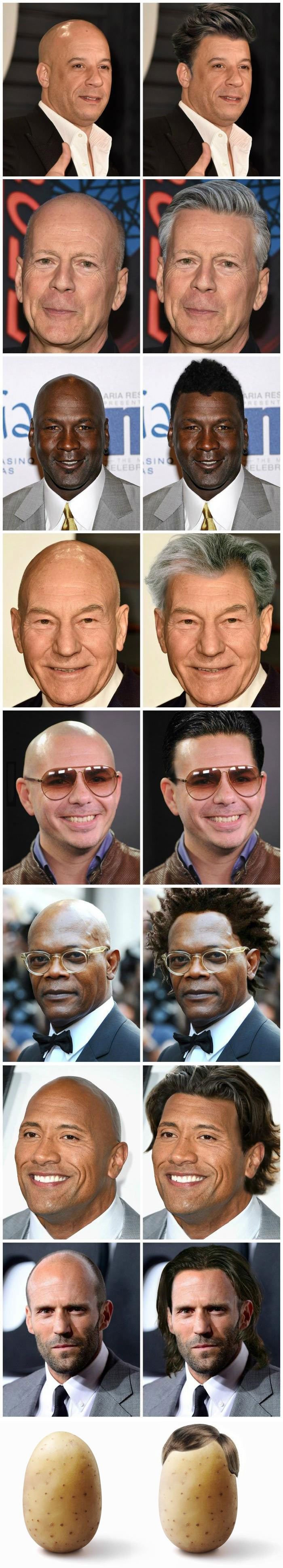 what bald celebrities would look like with hair