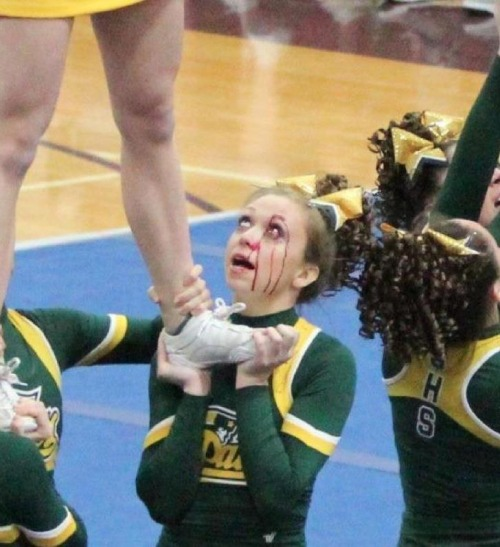 you may not know this but cheerleaders can be really hardcore, cheerleader with blood streaming down face