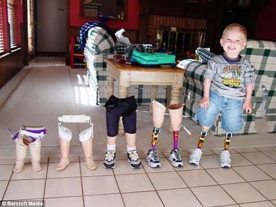 growing up, kid standing with his various prosthesis legs
